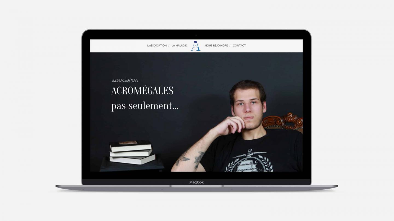 Site Internet  de l'association Acromégales Pas Seulement...